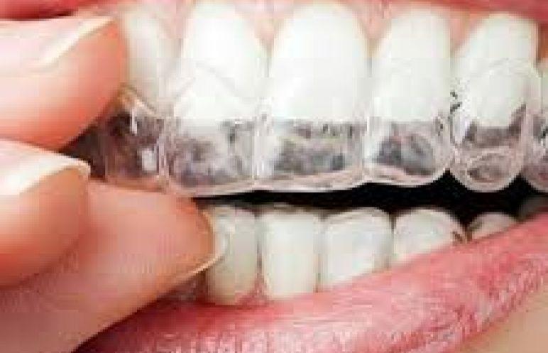Şeffaf Plaklar ile Telsiz Ortodonti